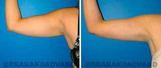 Liposuction: Before and After Photos - 26 year old female - front view(liposuction of her arms)