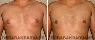 Breast Before & After Photos. Male Breast reduction
