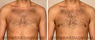 Gynecomastia. Before and After Photos. 24 year old man - front view