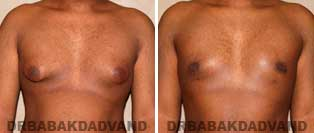 Gynecomastia. Before and After Photos. 22 year old man - front view