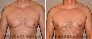 Gynecomastia. Before & After Photos. 39 year old man - front view