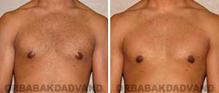 Gynecomastia. Before & After Photos. 23 year old man - front view