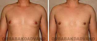 Before and After Photos. Gynecomastia. 27 year old. Man - front view