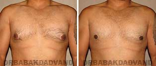 Before and After Photos. Gynecomastia. 28 year old. Man - front view