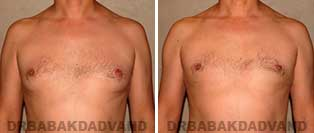 Before and After Photos. Gynecomastia. 40 year old. Man - front view