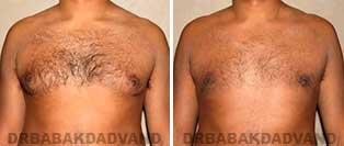 Before and After Photos. Gynecomastia. 33 year old. Man - front view