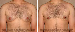 Before and After Photos. Gynecomastia. 26 year old. Man - front view