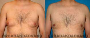 Before and After Photos. Gynecomastia. 40 year old. Male - front view
