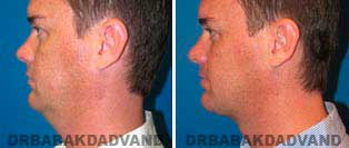 Necklift: Before and After Photos - 37 year old male, left side view