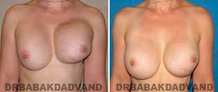 Revision Breast. Before and After Photos. 46 year old woman - front view