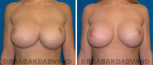 Revision Breast. Before and After Photos. 23 year old woman - front view
