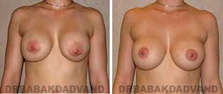 Revision Breast. Before and After Photos. 25 year old woman - front view