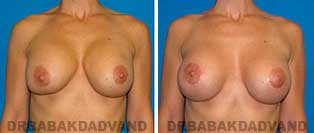 Revision Breast. Before and After Photos. 42 year old woman - front view