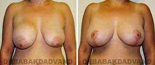 Revision Breast. Before and After Photos. 41 year old woman - front view