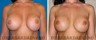 Revision Breast. Before & After Photos. 28 year old woman - front view