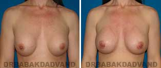Revision Breast. Before & After Photos. 37 year old woman - front view