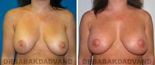 Revision Breast. Before & After Photos. 40 year old woman - front view