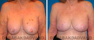Revision Breast. Before & After Photos. 67 year old woman - front view