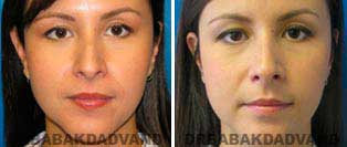 Rhinoplasty: Before and After Photos - 34 year old women, front view