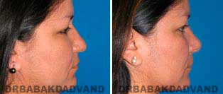 Rhinoplasty: Before and After Photos - 40 year old women, right side view