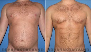 Vaser Liposaction Before & After Photos. Male